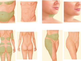 Liposuction sonrasında neler yapılmalı, Liposuction uygulaması sonrasında yapılması gerekenler, Liposuction ameliyatından sonra neler yapılır