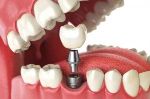 implant nasıl yapılır, implant uygulaması nasıldır, implant nasıl uygulanır