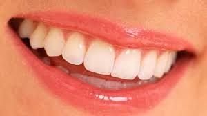 gülüş tasarımının etkileri nelerdir, gülüş tasarımının kişisel faydaları