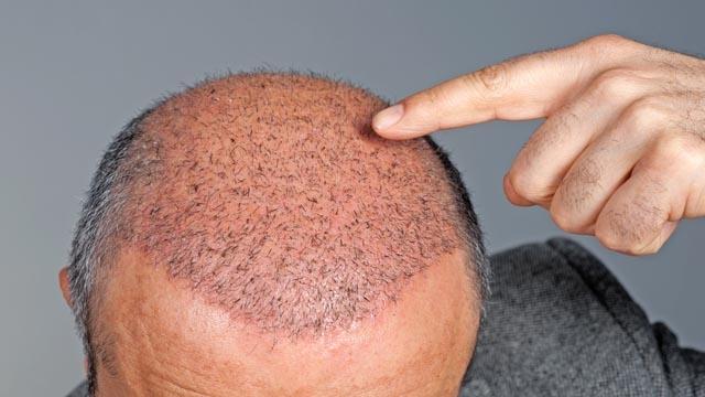 saç ekimi yaptırma, saç ekim merkezi seçme, seç ekim merkezi tercihi yapma