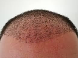 saç ekimi doktoru, saç ekimi yapımı, saç ekimi yapan doktor