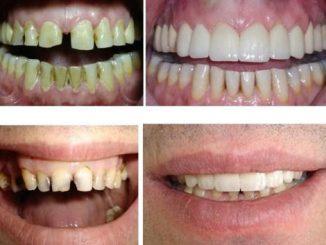 zirkonyum diş yaptırma, zirkonyum diş sağlıklı mı, zirkonyum diş fiyatı