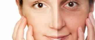 leke kremi kullanımı, güneş lekelerine karşı krem, leke kremi kullanımının önemi nedir
