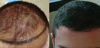 istanbul saç mekezi, istanbulda saç ekimi, saç ektirme merkezleri