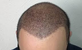 saç ektirmenin avantajları, saç ektirmenin dezavantajları, saç nasıl ekilir
