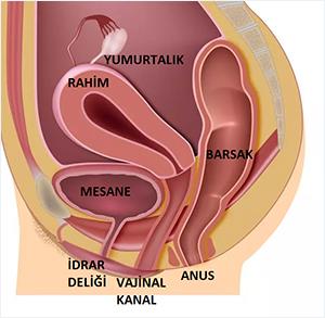 vajinusmus nedir, vajinusmus nedenleri, vajinusmus tedavisi
