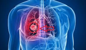 akciğer kanseri, en tehlikeli kanser hangisi, akciğer kanseri nedir