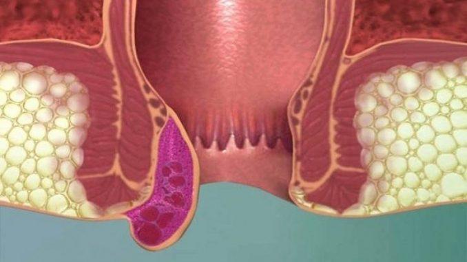 dış hemoroid belirtileri, hemoroid tedavisi, dış hemoroid tedavisi yapımı