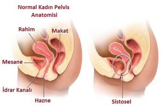 rahim sarkması, rahim sarkması nedenleri, rahim sarkması tedavileri