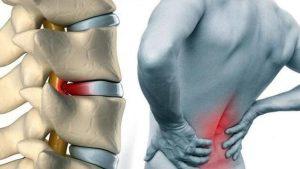 bel ağrısı sebepleri, bel ağrısının çözümleri, bel ağrısı nasıl geçer