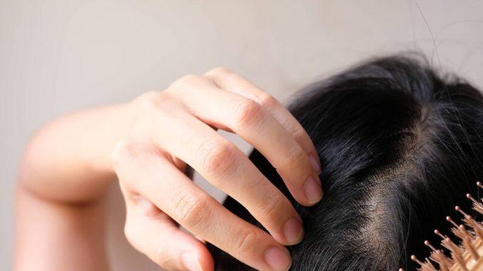 saç derisi bakımı, saç derisi bakımı yapma, saç derisi sağlığı
