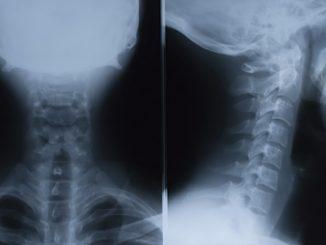 omurga tümörü nedir, omurga tümörü tedavisi, omurga tümörü ne demek