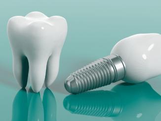 implant yapımı, implantın faydası nedir, implant nasıl yapılır